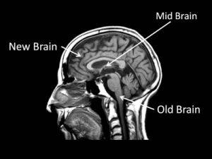 brain-diagram-section1-400x300